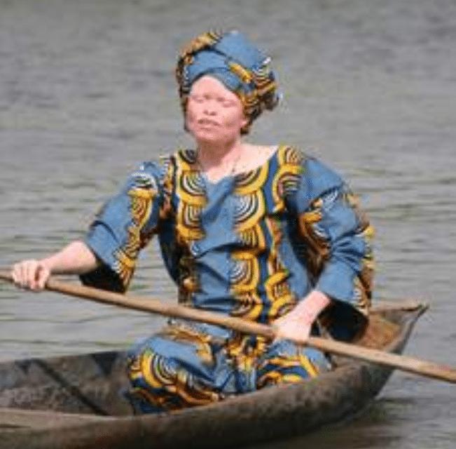 La double galère des femmes albinos