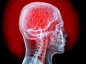cerebro biónico