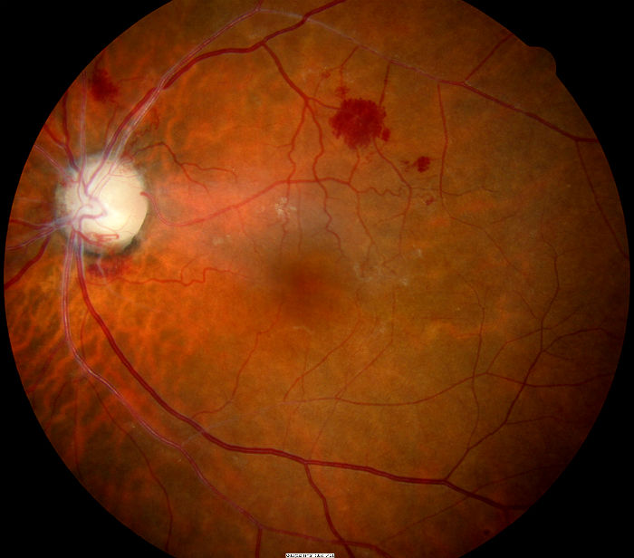 Scleral Crescent Optic Nerve