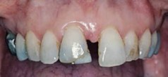 FIGURE 4. Moderate periodontitis and pathologic tooth migration in a 51-year-old woman.