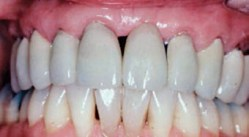 FIGURE 5. Closure of the diastema seen in Figure 4 following periodontal and prosthodontic therapy.