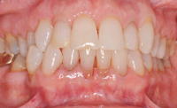 FIGURE 3. This photo shows teeth in maximum intercuspation.