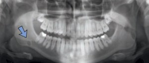 FIGURE 3. . The location of radiolucencies can support the diagnosis of a Stafne defect, as seen here in the right mandible.