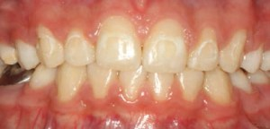 FIGURE 1. This image shows the decalcification present in a patient after orthodontic appliances were removed and treatment was completed.