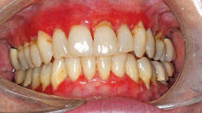 FIGURE 6. Gingival lesions on the marginal and attached gingiva caused by erosive lichen planus.