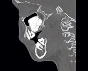 FIGURE 4. This sagittal computed tomography scan demonstrates a radiopaque lesion of the maxilla elevating the sinus.