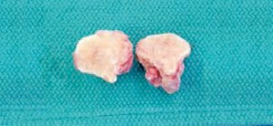 FIGURE 8. Gross appearance of the lesion after it was surgically excised.