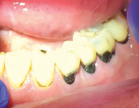FIGURE 3. Silver diamine fluoride was used to arrest primary and secondary root caries in this older adult. The balding of the tongue and caries resulted from xerostomia. The black, discolored surfaces do not show when speaking or smiling.