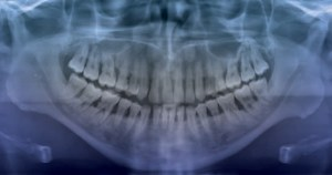 FIGURE 1. This panoramic radiograph of a 33-year-old male patient shows the presence of multiple periodontal abscesses and generalized, moderate to severe aggressive periodontal disease. It provides radiographic evidence of subgingival etiology and periradicular and crestal radiolucencies, indicating generalized vertical and horizontal bone loss.