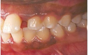 FIGURE 2. The upper right quadrant of a 14-year-old with localized aggressive periodontitis presents with a large diastema between #9 and #10. The papillae appear slightly bulbous, and probing depth is 5 mm to 6 mm.
