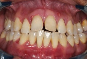 FIGURE 6. This 32-year-old Hispanic male patient presented with multiple abscesses, deep probing depths, and bleeding on probing, with visible inflammation, bulbous papillae and pathologic migration of teeth.
