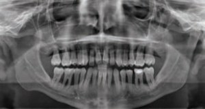 FIGURE 7. A panoramic radiograph shows full dentition with generalized severe bone loss and some subgingival etiology.