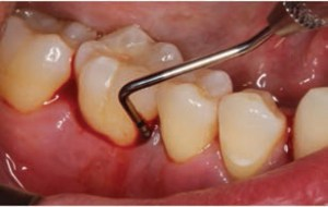FIGURE 9. Tooth #30 mesial-buccal with a 12 mm probing depth pretreatment.
