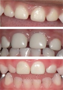 three examples of esthetic restorations for primary anterior dentition: composite strip crowns (A), preveneered stainless steel crowns (B), and zirconia crowns (C).