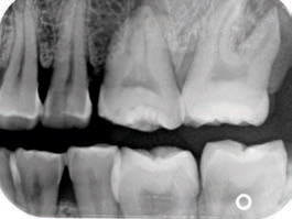 FIGURE 10. A premolar bitewing image that is missing the distal of the maxillary canine and mesial of the maxillary first premolar.