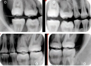 FIGURE 2. These horizontal bitewings provide open interproximal views of adjacent teeth (no overlapping) appropriate for each image.