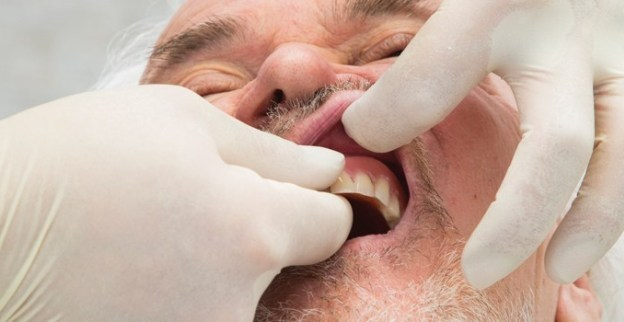 Maintenance Considerations for Prosthodontic Patients course image