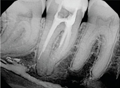 Shaping, Disinfecting and Obturating Root Canals - Decisions