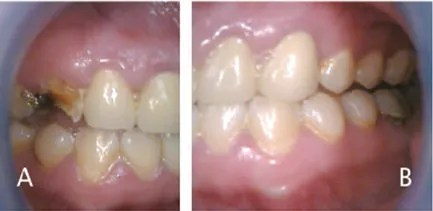 FIGURES 1A and 1B.These photos show the early stages of oral decay in a methamphetamine user: (A) caries and demineralization, starting at the gingival margins and progressing to the entire buccal or labial surface, including occlusal caries in posterior teeth; and (B) gingivitis with accompanying xerostomia. FIGURES 1A THROUGH 3B COURTESY MITCHELL GOODIS, DDS
