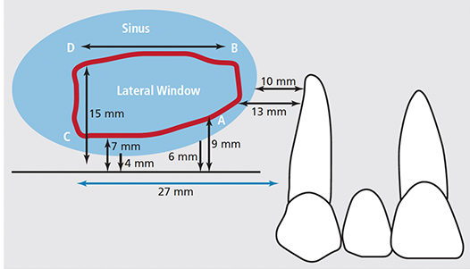 FIGURE 4. In this mapping of the maxillary right sinus for a window, the red line demarcates the boundaries of the lateral window, while the blue shading denotes the extent of the sinus. The extent of the lateral window is defined by four points: (A) inferior point of anterior osseous cut, (B) superior point of anterior osseous cut, (C) inferior point of posterior cut, and (D) superior point of posterior cut.