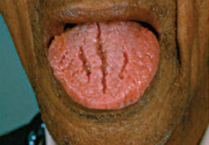 FIGURE 2. Squamous cell carcinoma can develop in the fissures that accompany scrotal tongue.