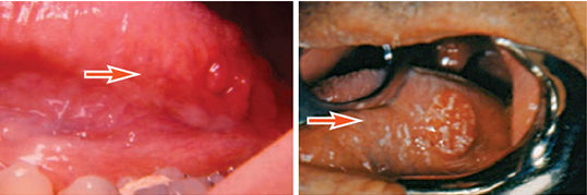 FIGURE 3A. The granular appearance of lingual tonsil often leads to a mistaken malignant diagnosis.FIGURE 3B. This is an example of squamous cell carcinoma located in lingual tonsil tissue.