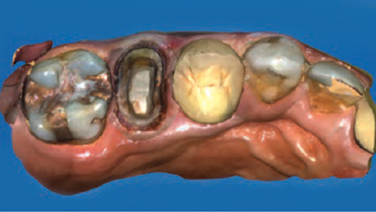 FIGURE 3. Digital scan of a crown preparation. FIGURES COURTESY IRA T. BLOOM, DDS
