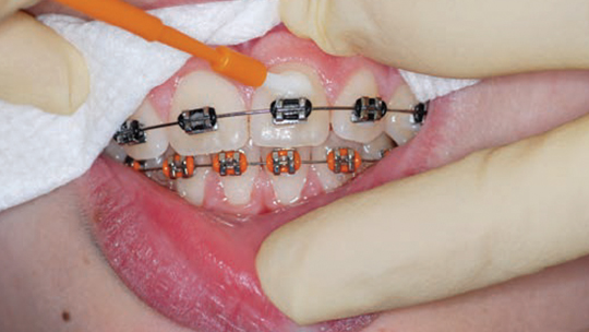The Evidence Supporting Fluoride Varnish Decisions In Dentistry