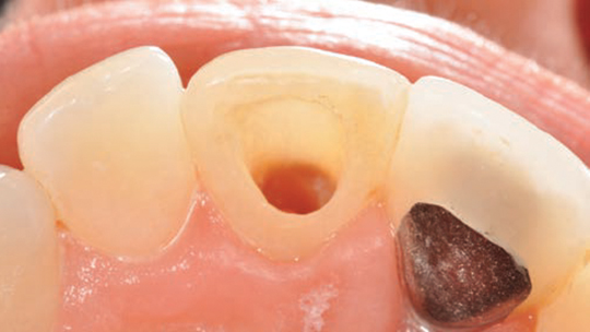 FIGURE 4. This lingual view depicts a maxillary central incisor that is intact (except for the access cavity). The tooth can be restored conservatively with composite resin.