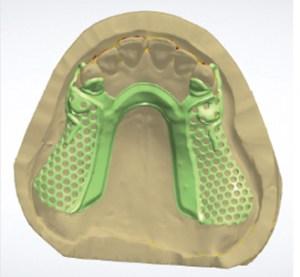 Digital Dentistry Digital Design