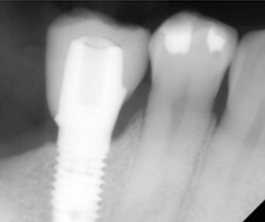 Digital Dentistry Implant Site