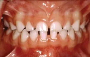 Space Management Primary Teeth