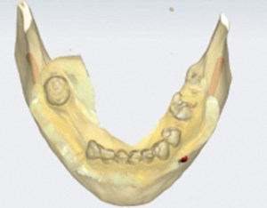 Intraoral Scan of Mandibular Arch