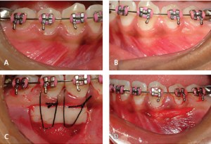 Free Gingival Graft Performed on Patient