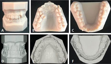 Orthodontic Practice Study Models
