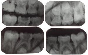 Severe molar incisor hypomineralization
