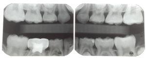 Molar incisor patient follow-up