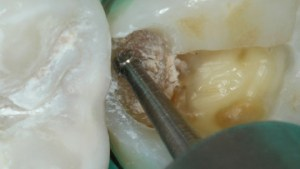 Dentin infected with caries