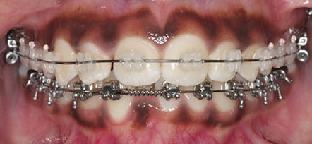 Ceramic brackets for orthodontic treatment