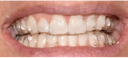 Clear aligners for orthodontic treatment