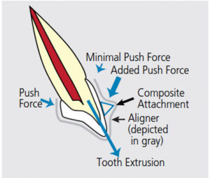Tooth shape to plan orthodontic treatment