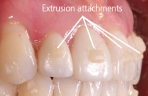 Attachements for orthodontic treatment