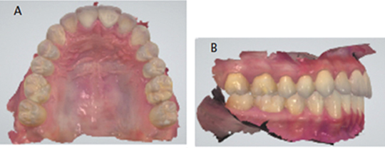 Intraoral scan during orthodontic treatment