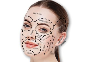 Facial injectables