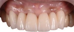 Implant placement treatment
