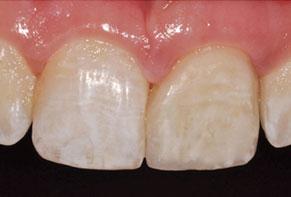 Veneer-restored tooth #9.