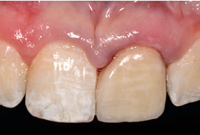Facial view of maxillary anterior.