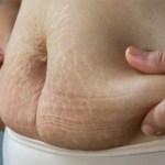 Como perder barriga pós parto