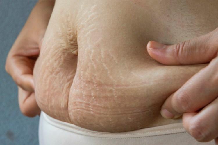 perder barriga de grávida