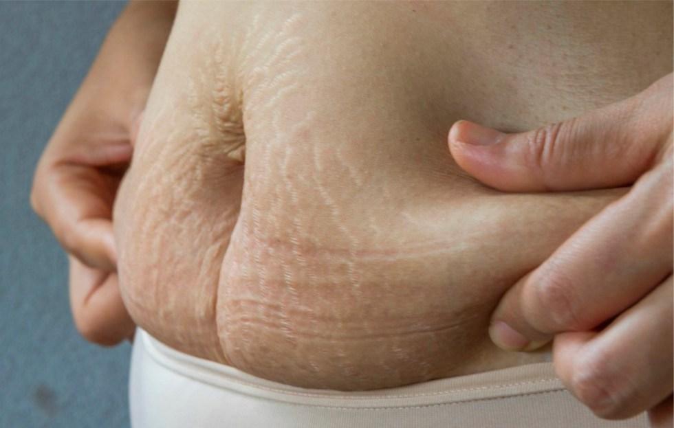 perder barriga pós parto